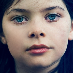 Freckles - After